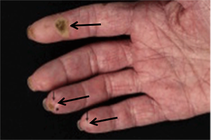 Limited-cutaneous-scleroderma.png